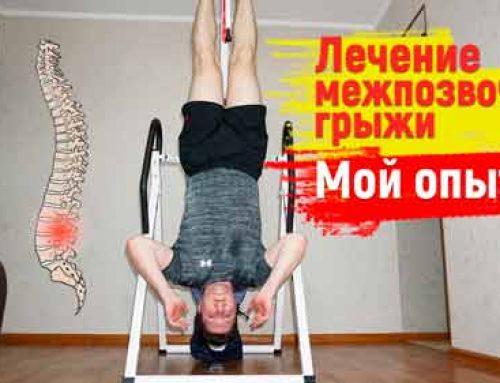Лечение межпозвочной грыжи. Мой опыт. Упражнения, рекомендации + инверсионный стол.
